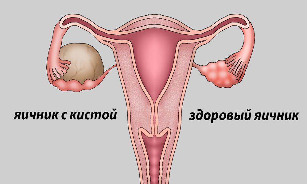 Почему болят яичники после месячных