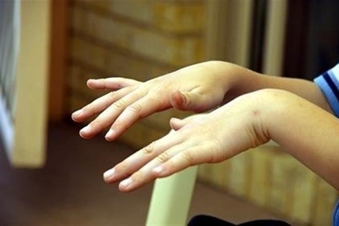 почему трясутся руки после пьянки