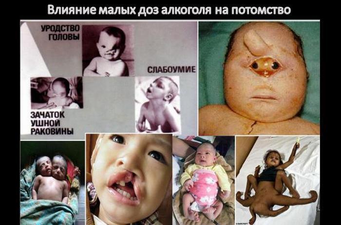 как влияет алкоголь на потомство
