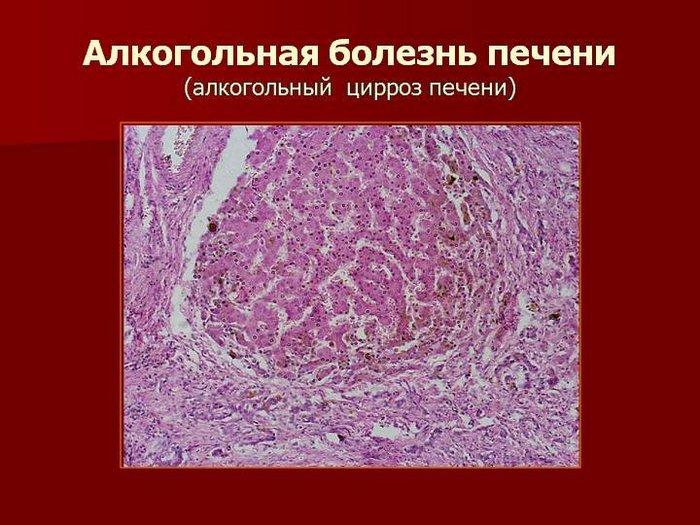 признаки заболевания печени