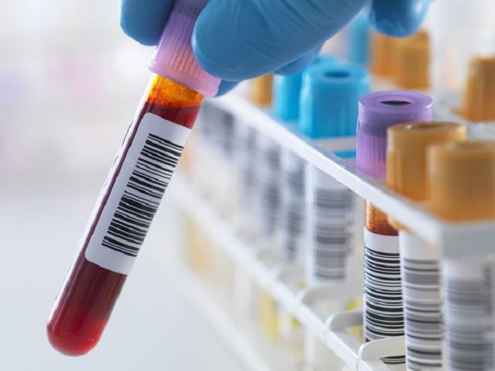 экспертиза на наличие алкоголя в крови