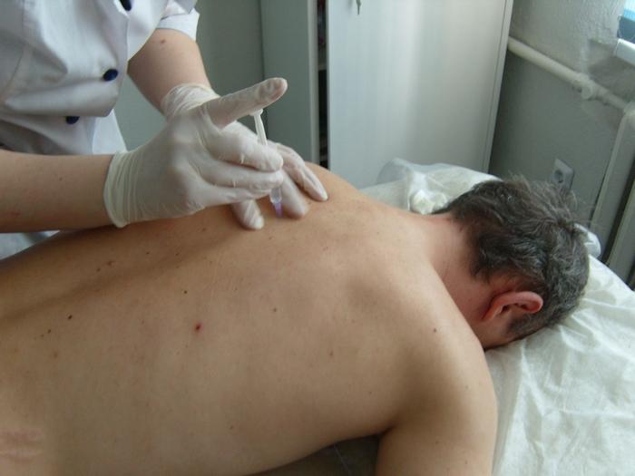 имплантация препарата дисульфирам