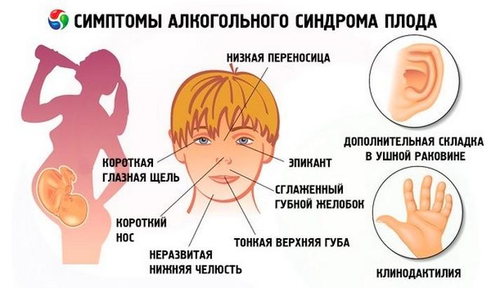 синдром фас