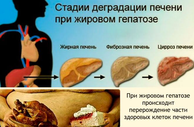 алкогольный гепатоз печени