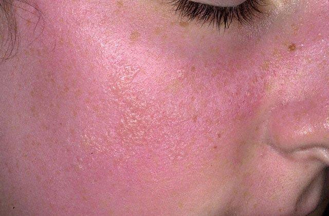 основные причины покраснения кожи