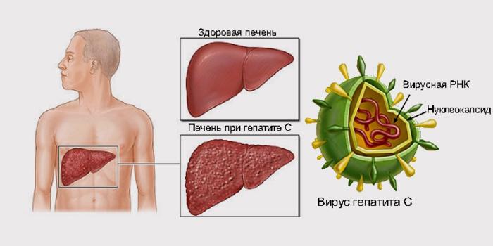 гепатит С - самая тяжелая форма вирусного гепатита
