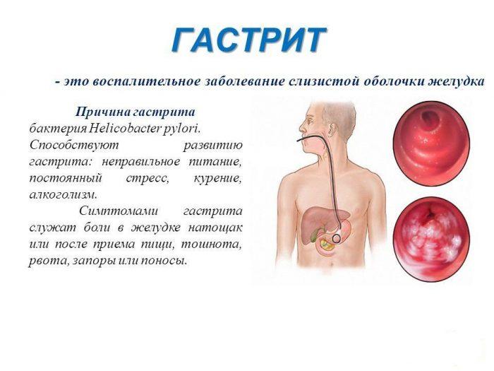 определение и формы гастрита