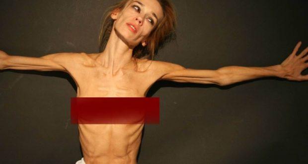 анорексия считается расстройством пищевого поведения