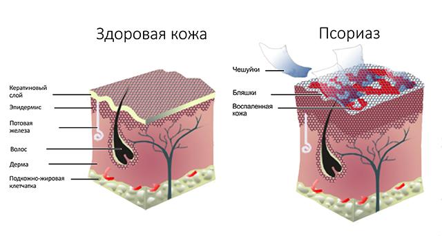 псориаз — это кожное заболевание
