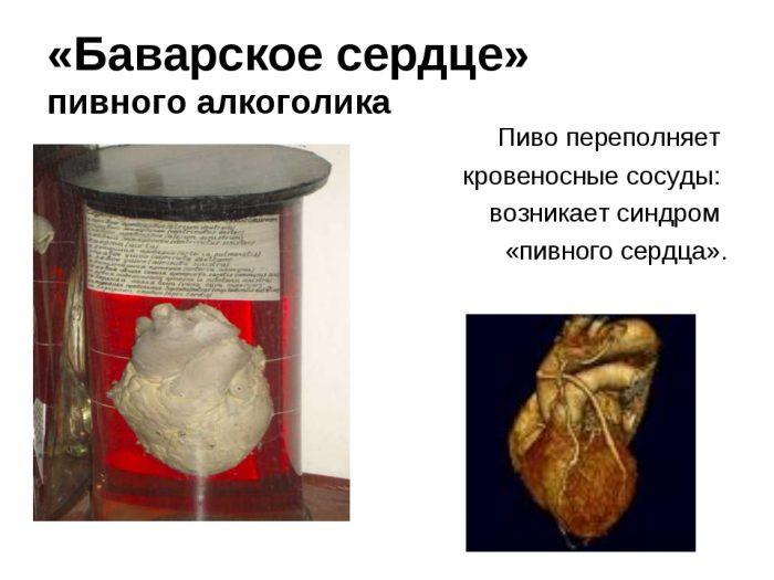 пиво и сердце