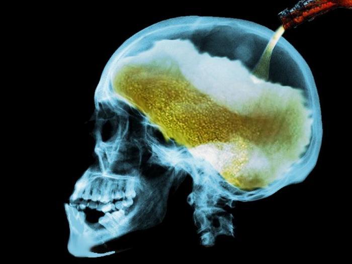 влияние этанола на головной мозг