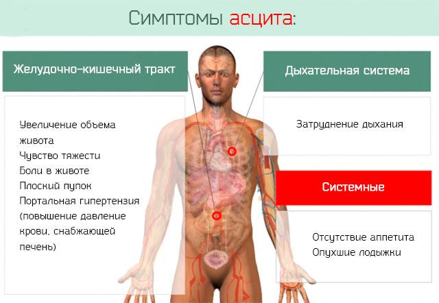 симптоматика асцита