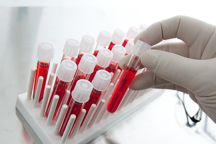 анализы крови при цирозе печени