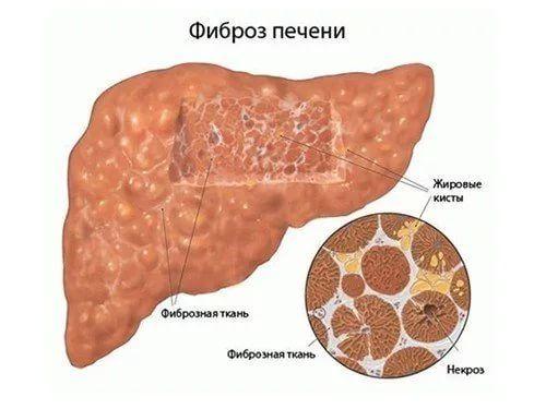 фиброзное замещение тканей