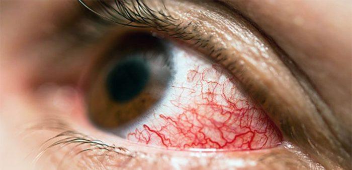 глаз алкоголика