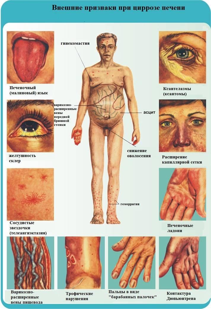 симптоматика при развитии болезни