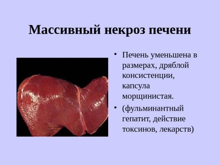причины уменьшения печени в размерах