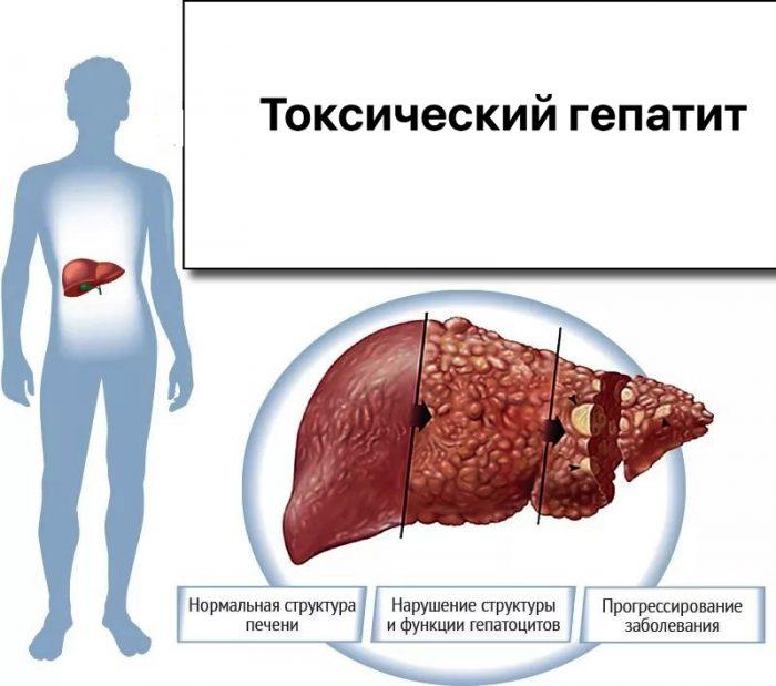 токсический алкогольный гепатит