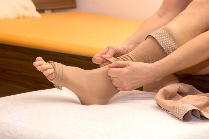 унять боль можно с помощью компрессионных чулок