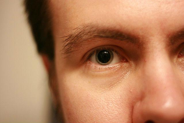 влияние алкоголя на человеческие глаза