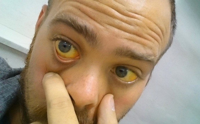 пожелтение кожи и глазных склер
