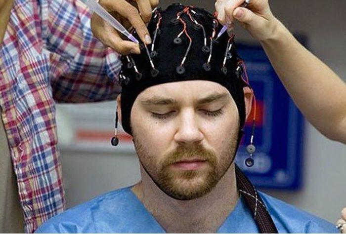 диагностика эпилептического припадка