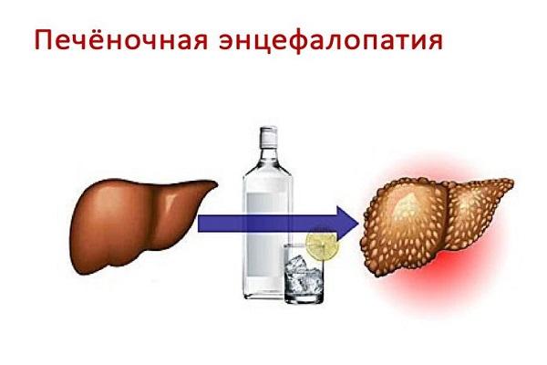признаки терминальной стадии цирроза