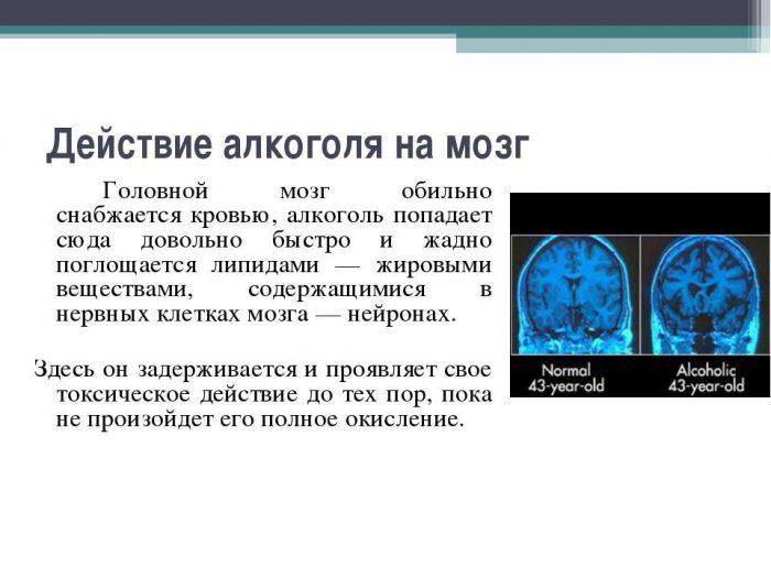 воздействие спиртного на мозг человека