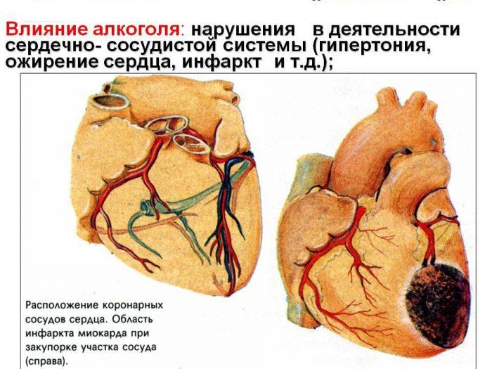 последствия от алкоголя для сердечно-сосудистой системы